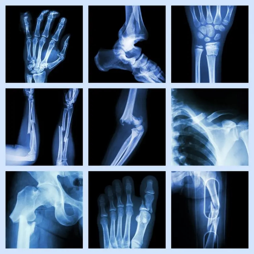 bone-fractures